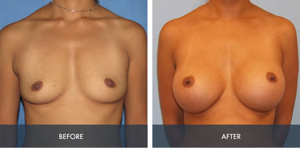 breast augmentation 1a
