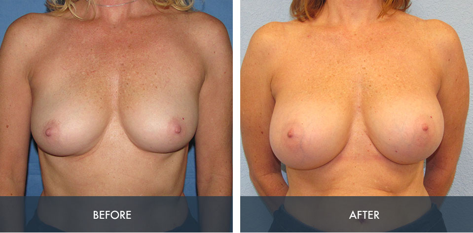 breast augmentation 3a