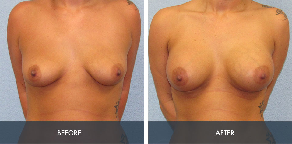 breast augmentation 5a