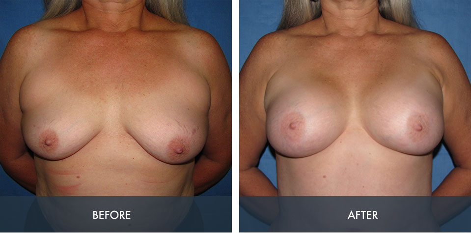 breast augmentation 8a