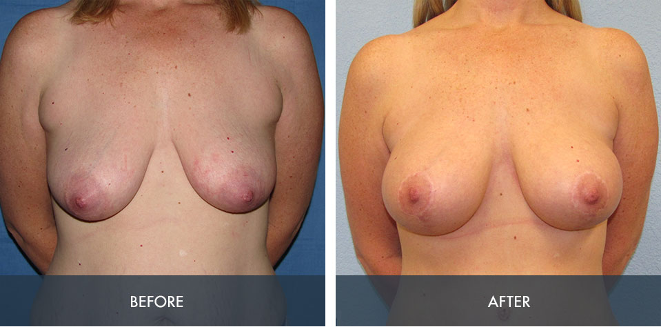 breast augmentation lift 1a
