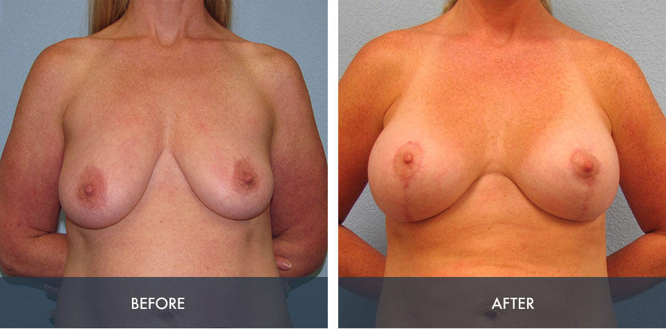 breast augmentation lift 2a