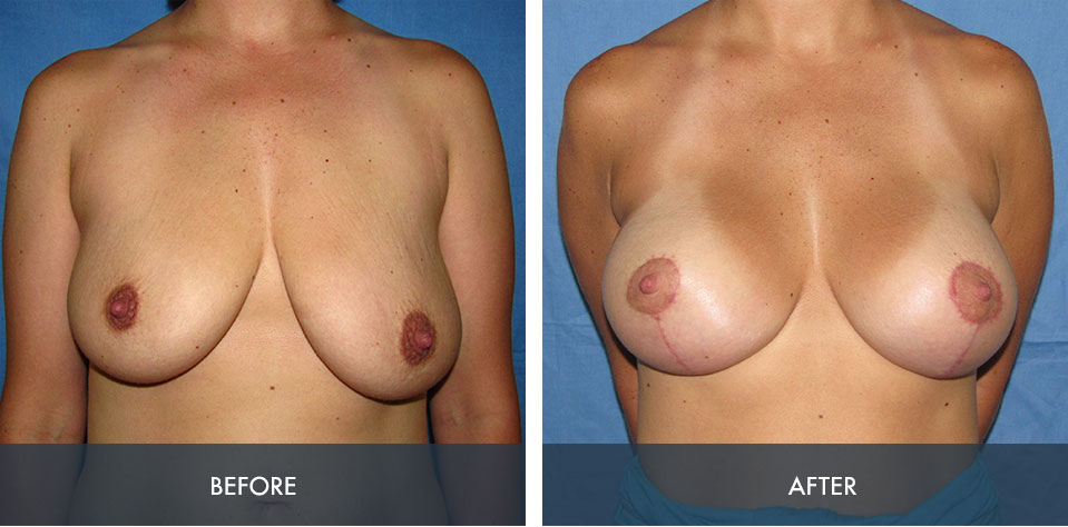 breast augmentation lift 4a
