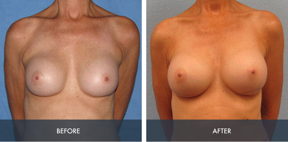 breast implant exchange 1a