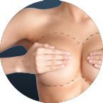 breast reduction circle image