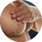 Breast Reconstruction Surgical Procedure