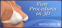 breast banner 3d models