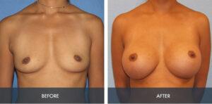 breast augmentation 1a