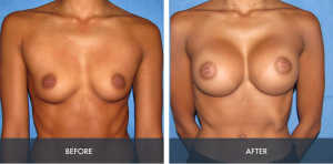 breast augmentation 2a
