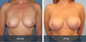 breast augmentation 3a