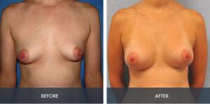 breast augmentation 4a