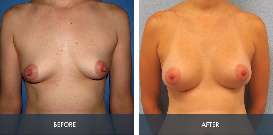 breast augmentation 4a