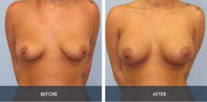 breast augmentation 5a