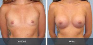 breast augmentation 6a