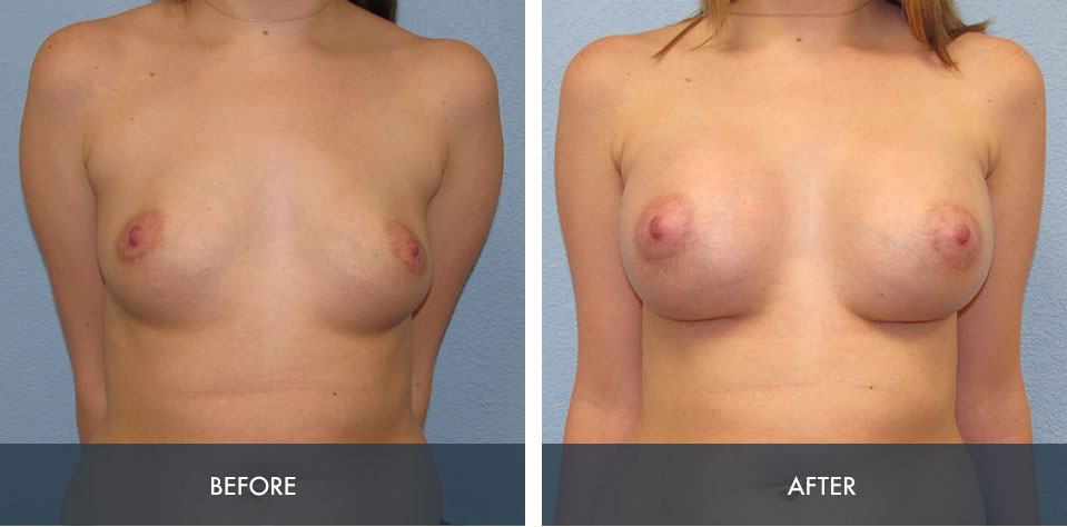 breast augmentation 7a