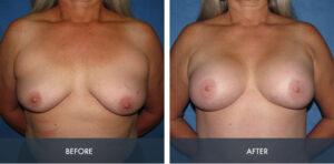 breast augmentation 8a