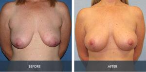 breast augmentation lift 1a