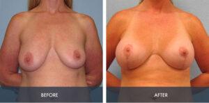 breast augmentation lift 2a