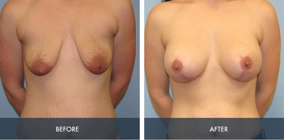 breast augmentation lift 3a
