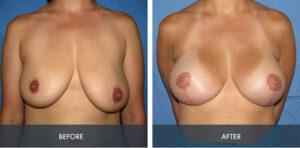 breast augmentation lift 4a