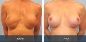breast implant exchange 2a