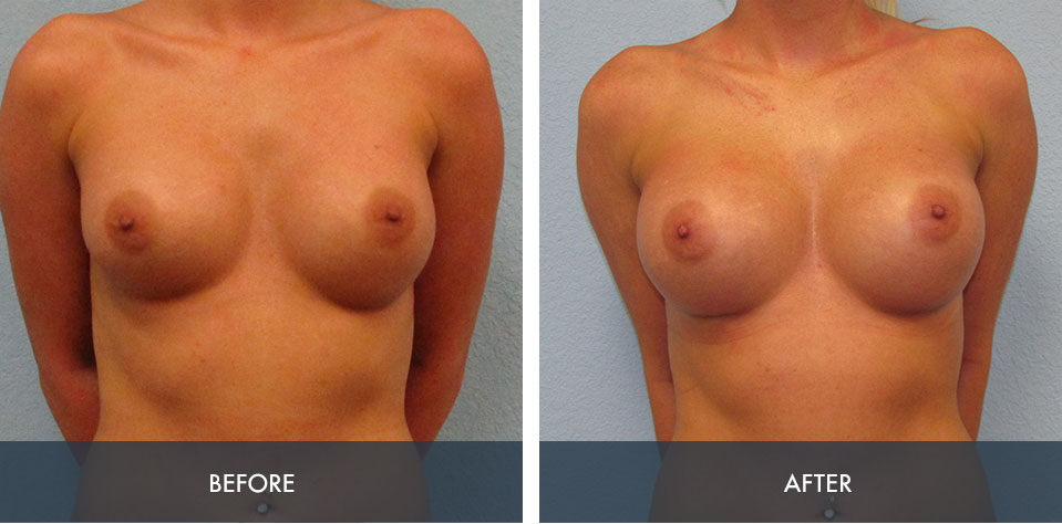 breast implant exchange 3a
