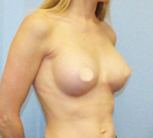 Breast Augmentation - After